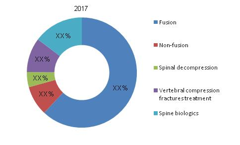 Spinal Implants Market Amp Surgical Equipment Market To 2017