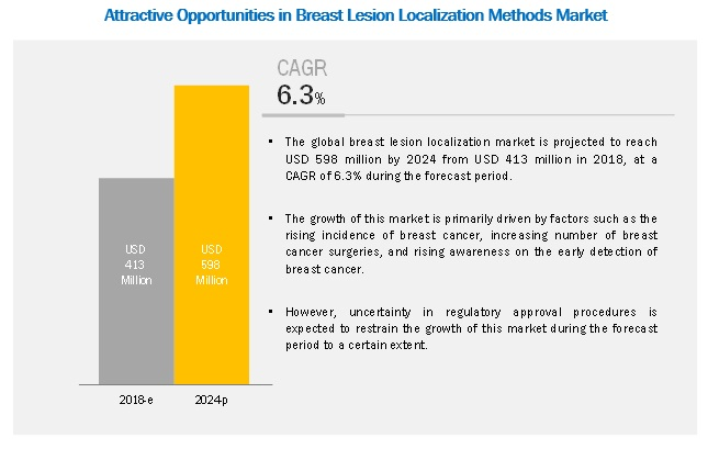 Breast Lesion Localization Methods Market