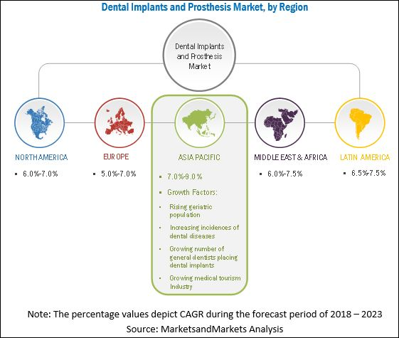 Dental Implants and Prosthetics Market, by Region