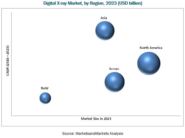 Digital X-ray Market