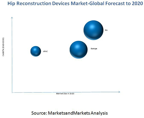 HIP Reconstruction Devices Market